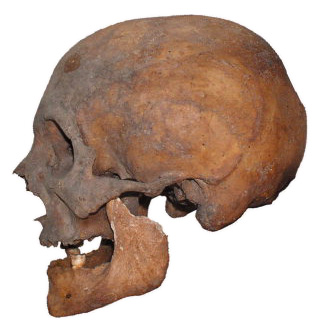 Figure-1-Left-lateral-view-of-the-skull-of-Pico-della-Mirandola-b-3D-digital-model-of.png